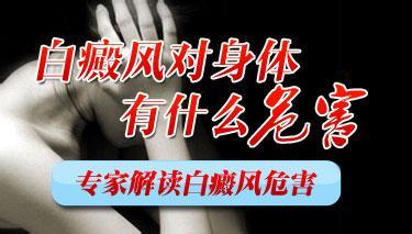 成都市白癜风医院:男性白癜风有什么危害