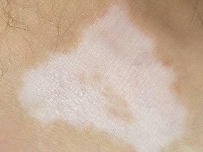 成都脸部白癜风白斑需要怎么治疗