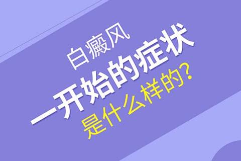四川成都看白斑医院:初期白癜风有哪些症状